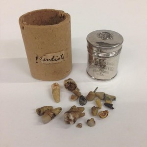 Some of Lindesmith's teeth and the Colgate & Co. Shaving Stick canister he saved them in.